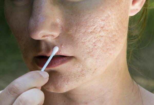 Giải pháp hay cho người gặp rắc rối về sẹo lõm - Điều trị mụn Dr Huệ - Hình 4