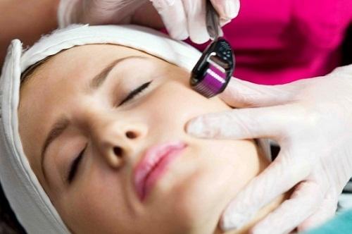 Giải pháp hay cho người gặp rắc rối về sẹo lõm - Điều trị mụn Dr Huệ - Hình 3