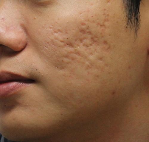 Giải pháp nào cho việc chữa khỏi sẹo lõm - Hình 2