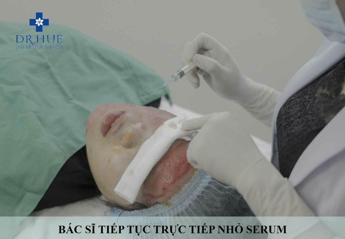 Giải pháp trị sẹo rỗ lâu năm an toàn và hiệu quả
