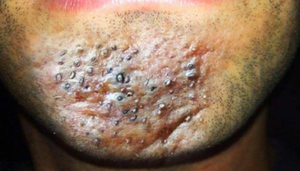 Giật mình với những biến chứng mụn trứng cá gây ra - Điều trị mụn Dr Huệ - Hình 3