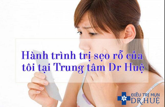 Hành trình trị sẹo rỗ của tôi tại Trung tâm Dr Huệ - Điều trị mụn Dr Huệ - Hình 1