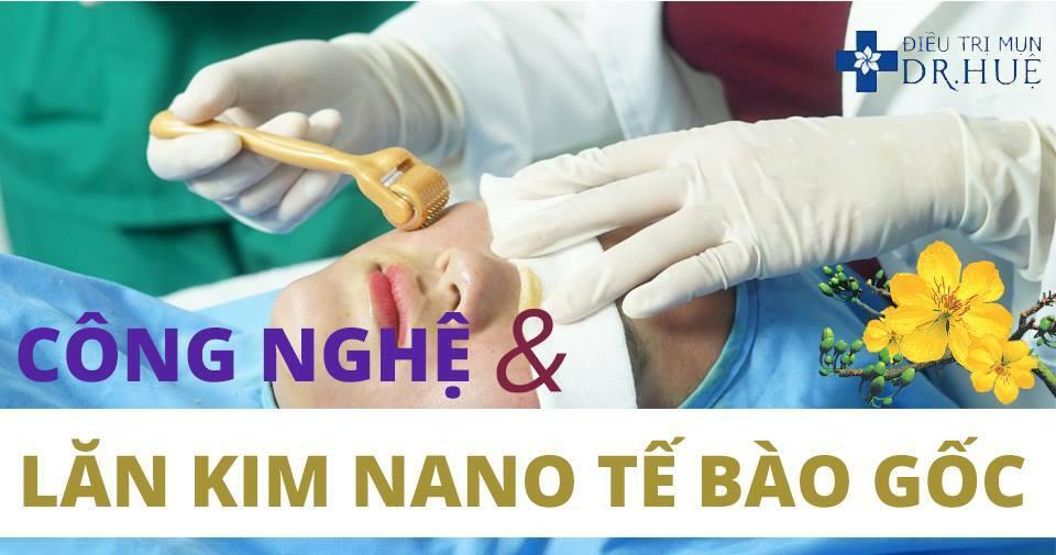 Hành trình trị sẹo rỗ của tôi tại Trung tâm Dr Huệ - Điều trị mụn Dr Huệ - Hình 4