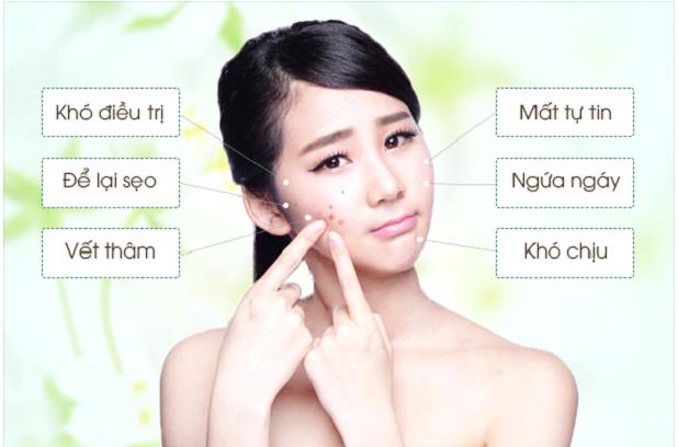 Hiểu biết về sẹo lõm và cách điều trị hiệu quả hiện nay - Hình 3