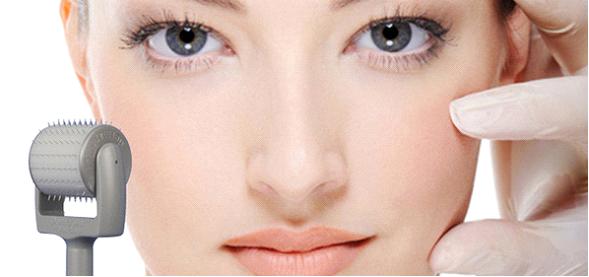 Hiểu biết về sẹo lõm và cách điều trị hiệu quả hiện nay