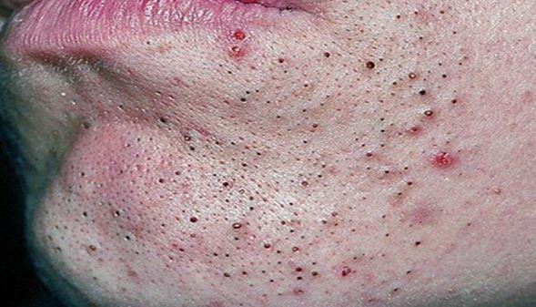 Hoảng sợ với 4 biến chứng tai hại mà mụn đầu đen gây ra - Điều trị mụn Dr Huệ - Hình 3