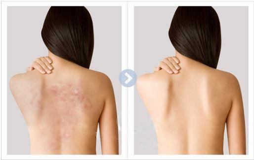 Điều trị mụn lưng hiệu quả nhanh chóng - Hình 2