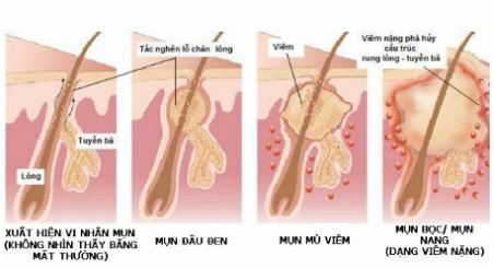 Điều trị mụn lưng hiệu quả nhanh chóng - Hình 3