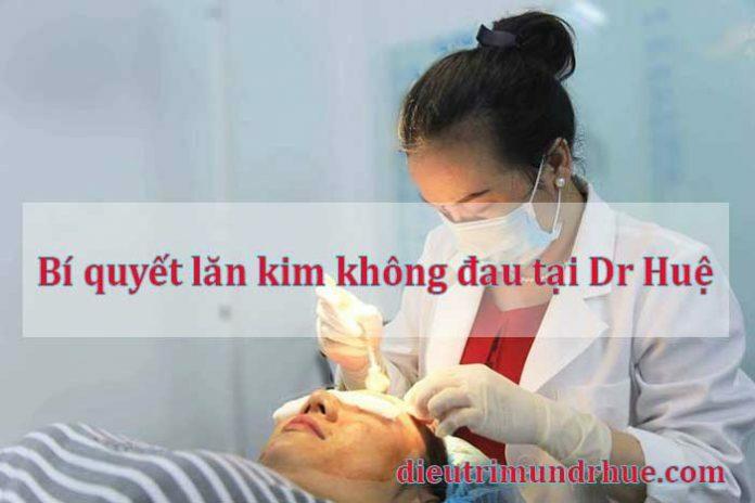 Bí quyết lăn kim không đau tại Dr Huệ - Điều trị mụn Dr Huệ - Hình 1