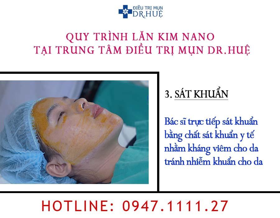 Liệu trình lăn kim nano tại Trung tâm Điều trị mụn Dr.Huệ - Điều trị mụn Dr Huệ - Hình 4