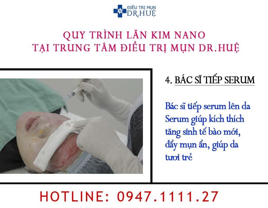 Liệu trình lăn kim nano tại Trung tâm Điều trị mụn Dr.Huệ - Điều trị mụn Dr Huệ - Hình 6