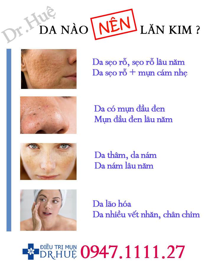 Loại da nào nên và không nên lăn kim? - Điều trị mụn Dr Huệ - Hình 2