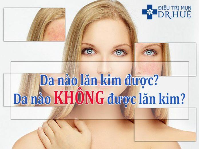 Loại da nào nên và không nên lăn kim? - Điều trị mụn Dr Huệ - Hình 1