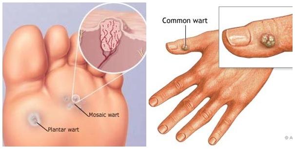 Mụn cóc là gì? Cách điều trị mụn cóc hiệu quả - Điều trị mụn Dr Huệ - Hình 2