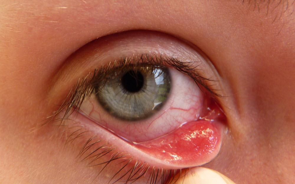 Mụn lẹo là gì? Cách điều trị mụn lẹo ở mắt hiệu quả? - Hình 3