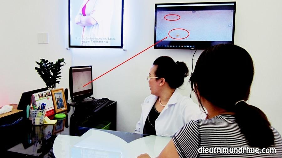 Những đặc điểm nổi bật của phương pháp lăn kim điều trị sẹo rỗ - Điều trị mụn Dr Huệ - Hình 5