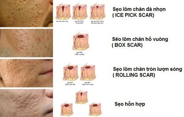 Những đặc điểm nổi bật của phương pháp lăn kim điều trị sẹo rỗ