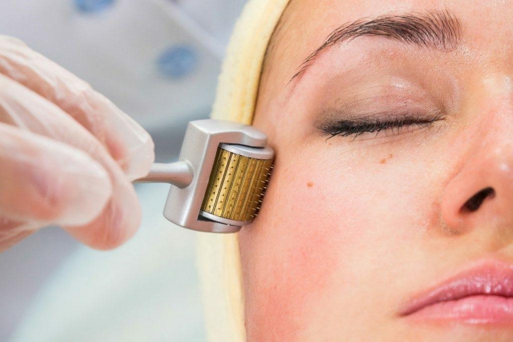 Những đặc điểm nổi bật của phương pháp lăn kim điều trị sẹo rỗ - Điều trị mụn Dr Huệ - Hình 4