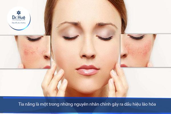 Những dấu hiệu da bị bào mòn mỏng và yếu - Điều trị mụn Dr Huệ - Hình 2
