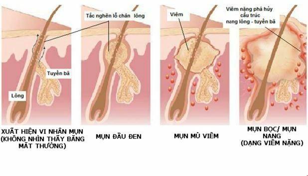 Những nguyên nhân chính gây ra mụn bọc cho bạn - Điều trị mụn Dr Huệ - Hình 3