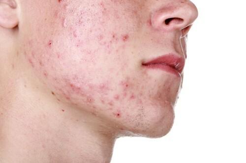 Phương pháp điều trị mụn hiệu quả nhất cho nam - Điều trị mụn Dr Huệ - Hình 2