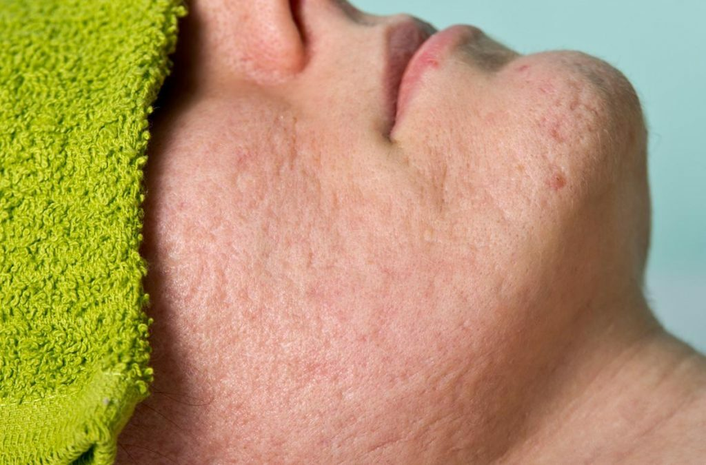 Phương pháp lăn kim – con đường ngắn nhất để xóa sạch sẹo rỗ - Hình 2