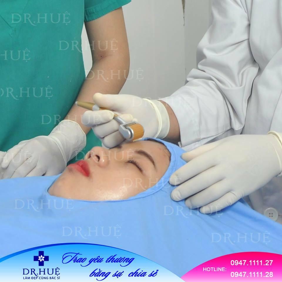 Phương pháp trị mụn nhanh khỏi cho người bị mụn lâu năm - Điều trị mụn Dr Huệ - Hình 3