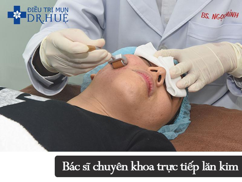 Quy trình điều trị mụn và sẹo rỗ an toàn hiệu quả - Điều trị mụn Dr Huệ - Hình 3