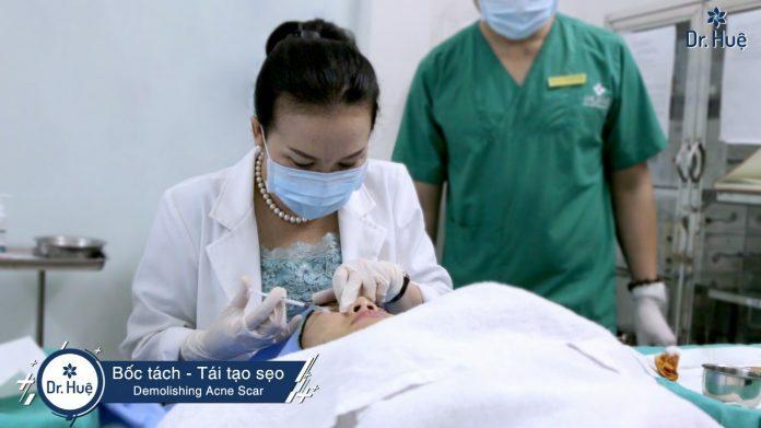 Quy trình tách sẹo được thực hiện như thế nào? - Điều trị mụn Dr Huệ - Hình 1