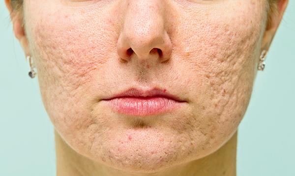 Sẹo rỗ là gì? Làm sao để trị sẹo rỗ lâu năm trên da? - Điều trị mụn Dr Huệ - Hình 1