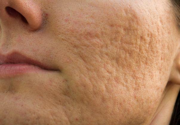 Sẹo rỗ là gì? Làm sao để trị sẹo rỗ lâu năm trên da? - Điều trị mụn Dr Huệ - Hình 2