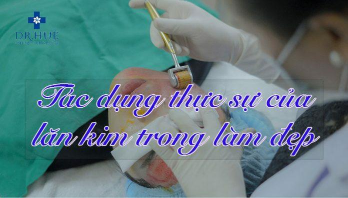 Tác dụng thực sự của lăn kim trong làm đẹp - Điều trị mụn Dr Huệ - Hình 1