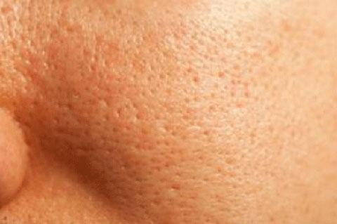 Tại sao phải điều trị sẹo lõm bằng phương pháp lăn kim? - Hình 1