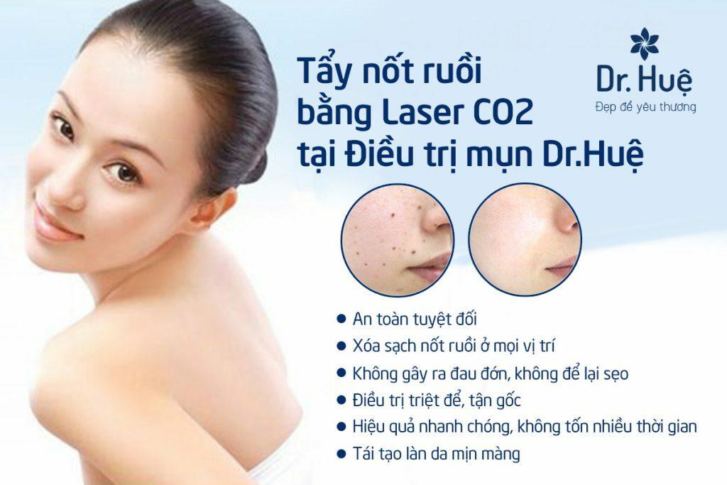 Tẩy nốt ruồi bằng tia Laser bao nhiêu tiền? - Hình 8