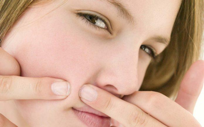 Té ngửa với những phương pháp trị mụn siêu tốc gây hại cho da - Hình 1