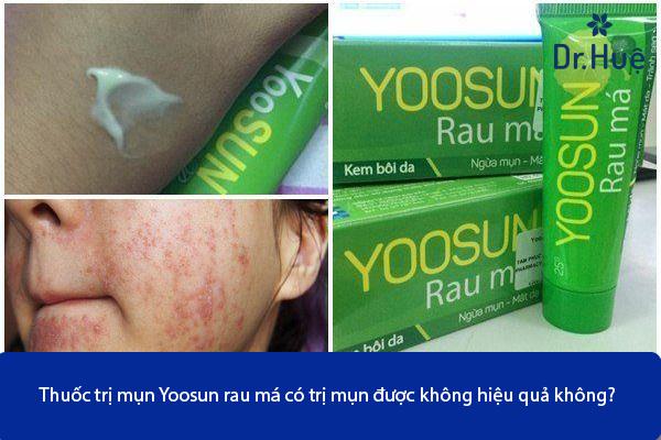 Thuốc Trị Mụn Yoosun Rau Má Có Trị Mụn Được Không Hiệu Quả Không - Hình 4