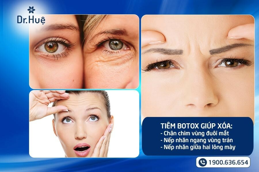 Tiêm Botox có tác dụng gì