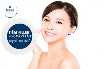[Bác Sĩ Giải Đáp] Tiêm Filler bao lâu thì ổn định mềm và đẹp