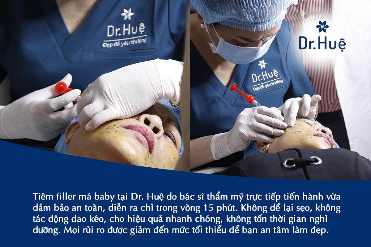 Ưu điểm khi tiêm filler má baby tại Dr. Huệ