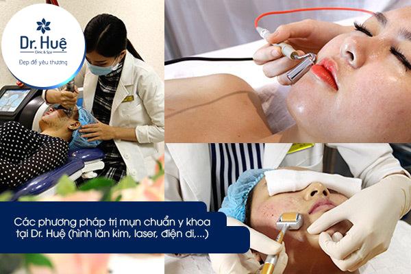 Các phương pháp trị mụn  tại Dr Huệ