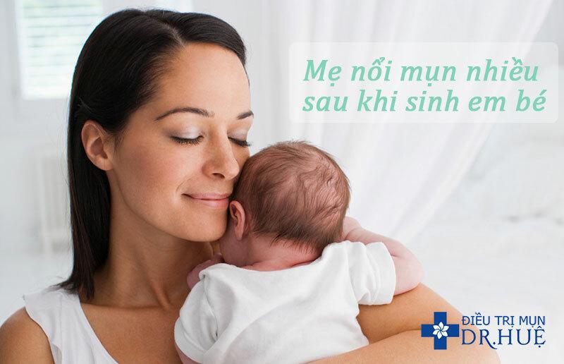 Trị mụn sau sinh thế nào cho an toàn? - Điều trị mụn Dr Huệ - Hình 2