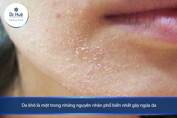 [Tư Vấn] Bị dị ứng da mặt nên làm gì? - Điều trị mụn Dr Huệ - Hình 2