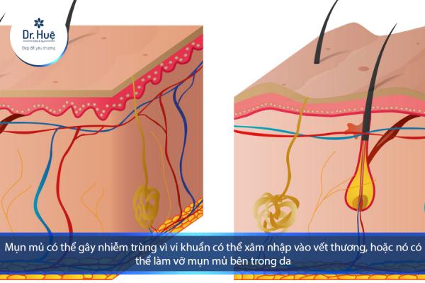 [Tư Vấn] Da mặt bị ngứa và nổi mụn mủ nên làm gì - Điều trị mụn Dr Huệ - Hình 1