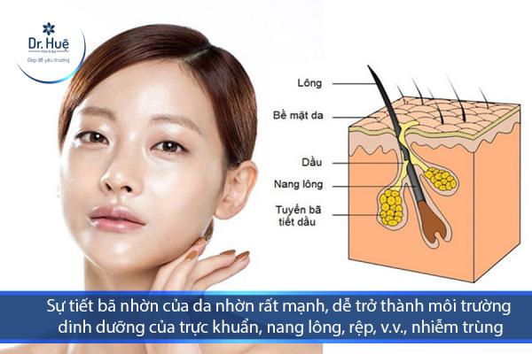 [Tư Vấn] Mặt tự nhiên nổi nhiều mụn bọc nên làm - Điều trị mụn Dr Huệ - Hình 2