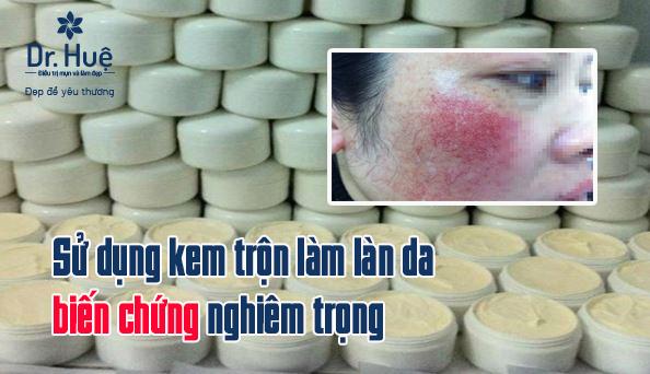Vì sao sử dụng kem trộn làm làn da biến chứng nghiêm trọng - Điều trị mụn Dr Huệ - Hình 1