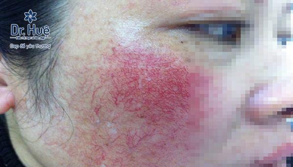 Vì sao sử dụng kem trộn làm làn da biến chứng nghiêm trọng - Điều trị mụn Dr Huệ - Hình 3