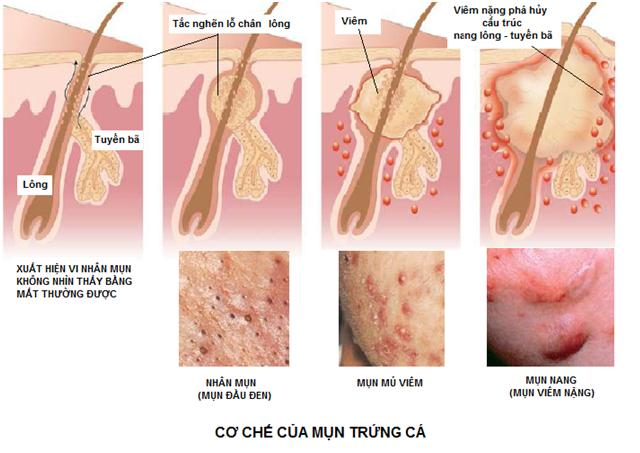 điều trị mụn ở tphcm