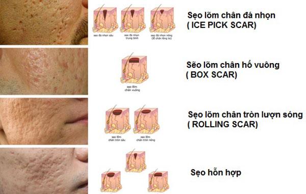 điều trị sẹo lõm giá bao nhiêu