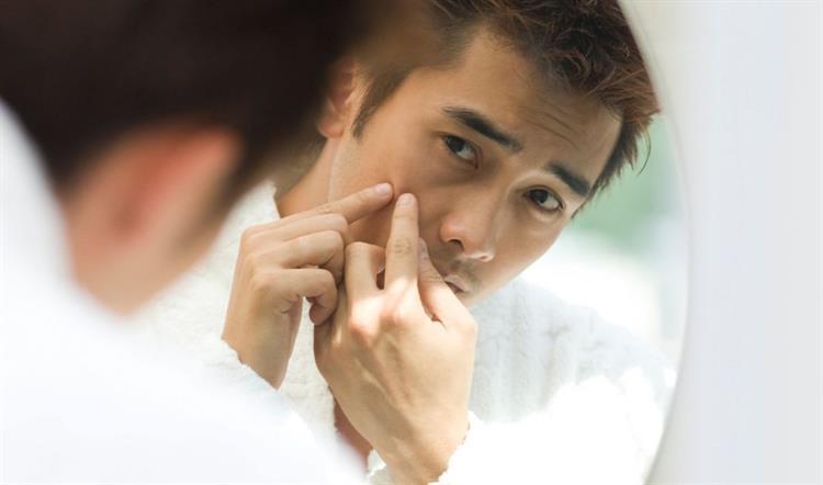 nnn - Điều trị mụn cho nam giới hiệu quả