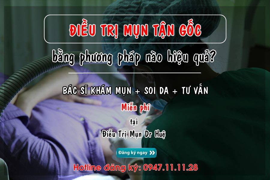 dieu-tri-mun-tan-goc